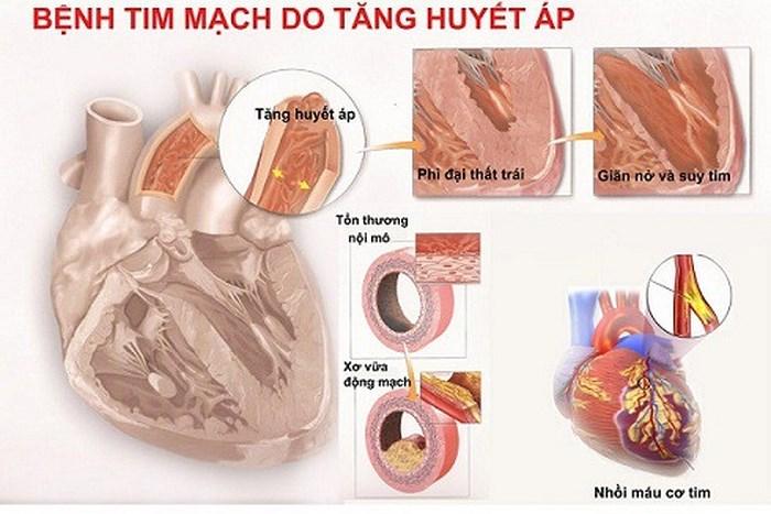 Nguy cơ bệnh tăng huyết áp